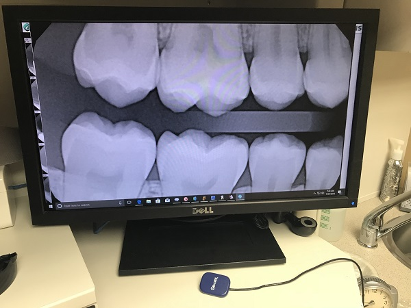 Digital x-rays by our dentist at Smiles of Tulsa in Tulsa, OK