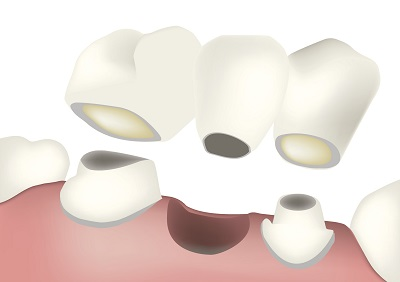 Diagram of a dental bridge from dentist office in Tulsa, OK.