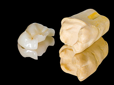 Dental inlays and onlays by dentist in Tulsa, OK.