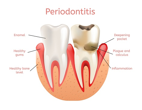 Diagram of a normal tooth and a tooth with periodontal disease in need of treatment by Tulsa dentist at Smiles of Tulsa